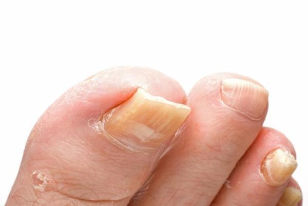 Onicogrifose: tratamento e remédios caseiros