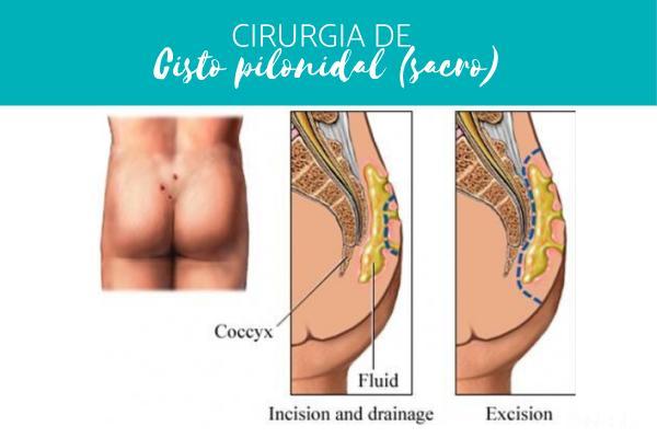 Cisto pilonidal (sacro): causas, sintomas e tratamento