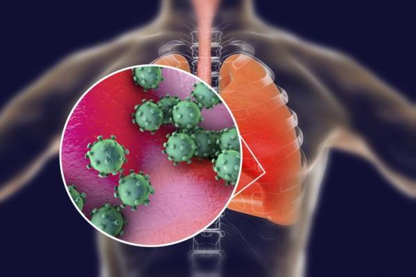 Coronavírus (2019-nCoV): sintomas, contágio e tratamento