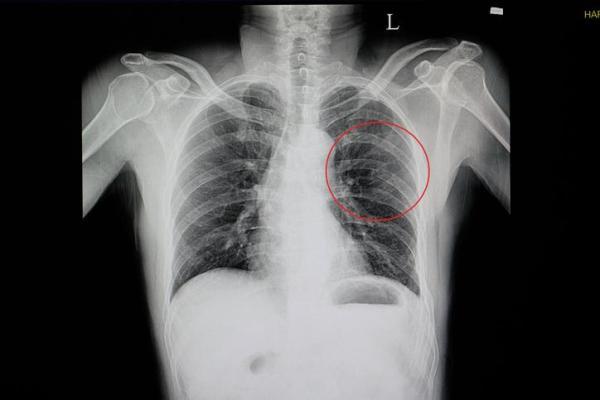 Dor embaixo das costelas do lado esquerdo: causas - Dor embaixo das costelas: causas comuns