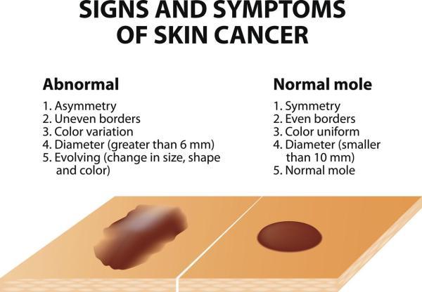Manchas nas mãos: causas e como tirar - Manchas nas mãos por câncer de pele