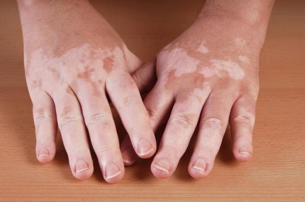 Manchas nas mãos: causas e como tirar - Manchas nas mãos: tipos