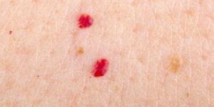 Pintas vermelhas de sangue na pele: causas e como tirar
