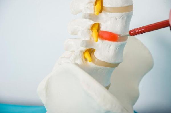 Formigamento no braço direito: causas - Braço direito adormecido por lesão de um nervo