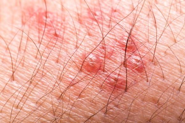 Fisgadas pelo corpo: causas e tratamento - Infecção viral