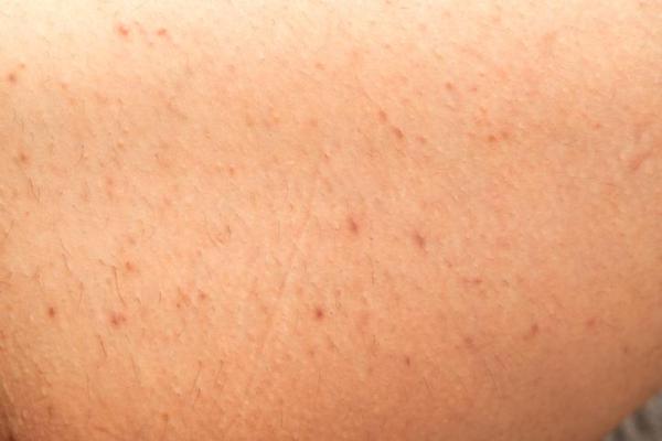 Tratamentos caseiros para foliculite nas pernas
