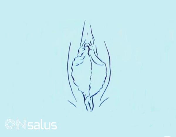 Lábios vaginais grandes: causas
