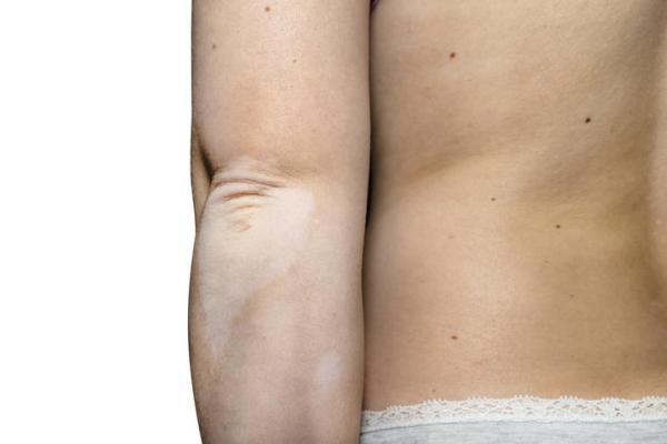 Manchas brancas no braço: causas, tratamento e remédios