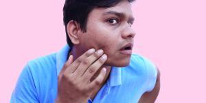 Como acalmar a pele do rosto irritada