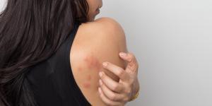 Alergia nervosa: causas e tratamento